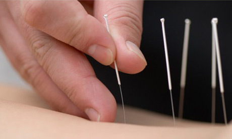 MainImage_Acupuncture